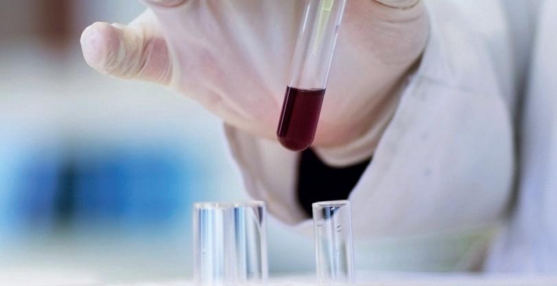 Ekspozycja zawodowa pracowników na czynniki biologiczne w medycznym laboratorium diagnostycznym